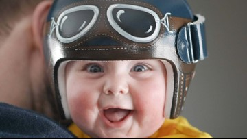 Artist uses talent to transform pediatric helmets into adorable works of art
