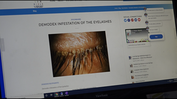 Eyelash lice: Yes, it's real
