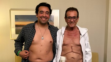 Groundbreaking liver transplant procedure announced at Cleveland Clinic