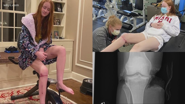 Caroline's courage: Gilmour Academy teen combines grit with gratitude to battle back after 'devastating' leg injury