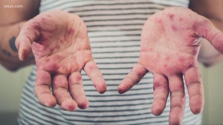 Stark County resident contracts state's first measles case since 2017