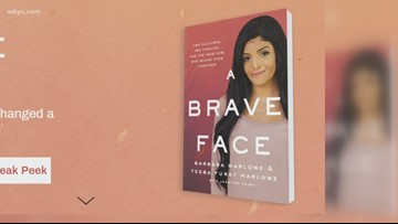 Life story of disfigured Iraq girl now living in Concord is now a book
