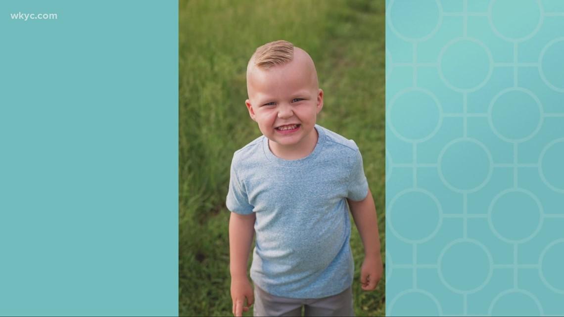 A Massillon boy's rare allergy to sunlight exposure