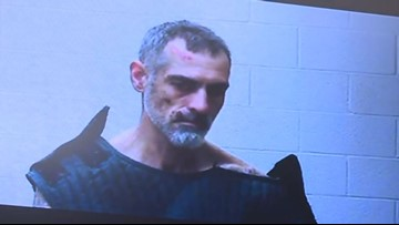 Bond set at $1 million for man accused of setting Portage County police deputy on fire