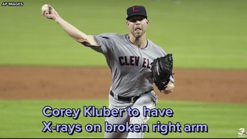 Cleveland Indians pitcher Corey Kluber to have X-rays on broken right arm
