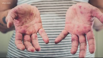Could a measles outbreak happen in Ohio?