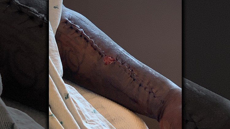 Terry Smith arm after surgery